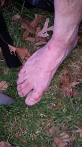 raw feet